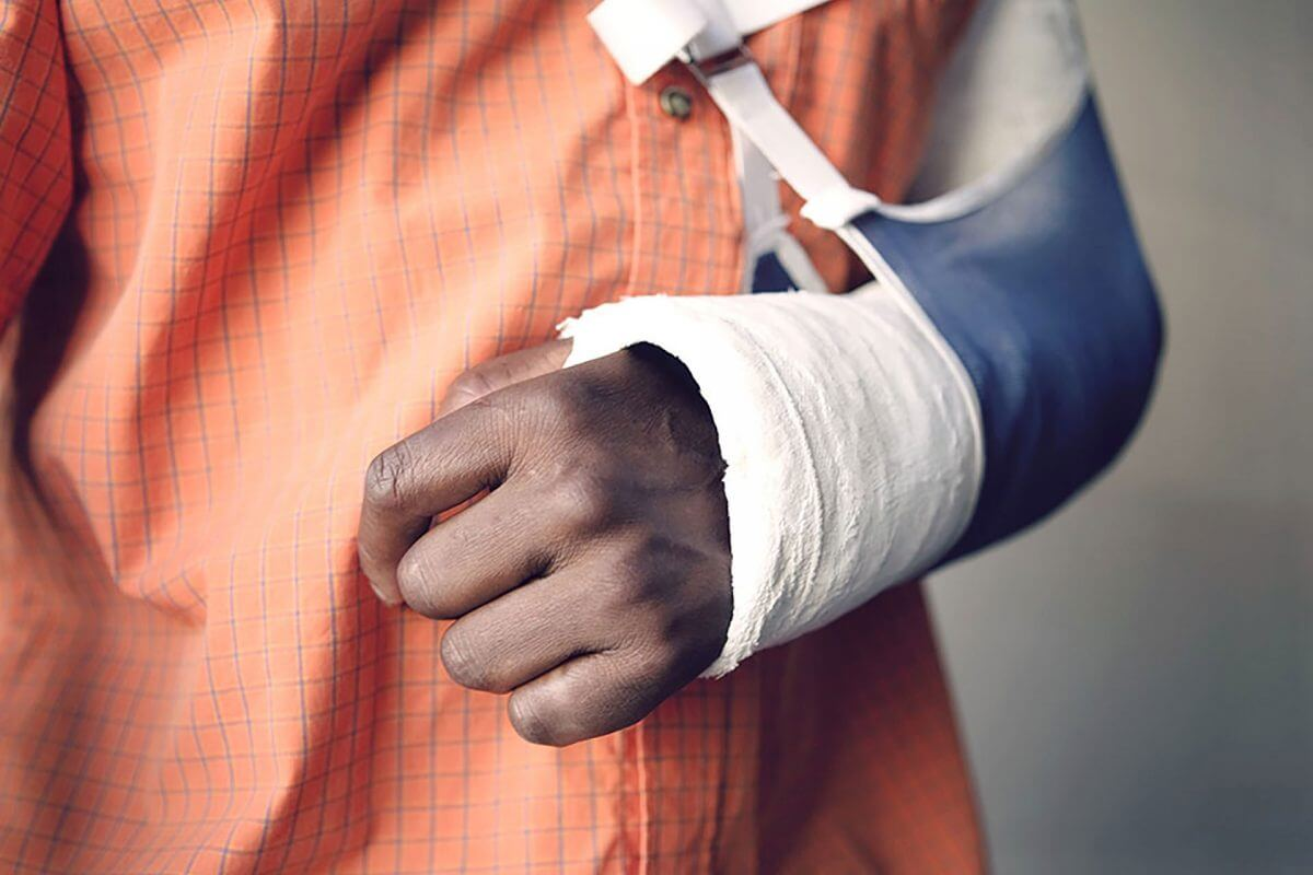 Broken Bones: When Should You Go to The Emergency Room?
