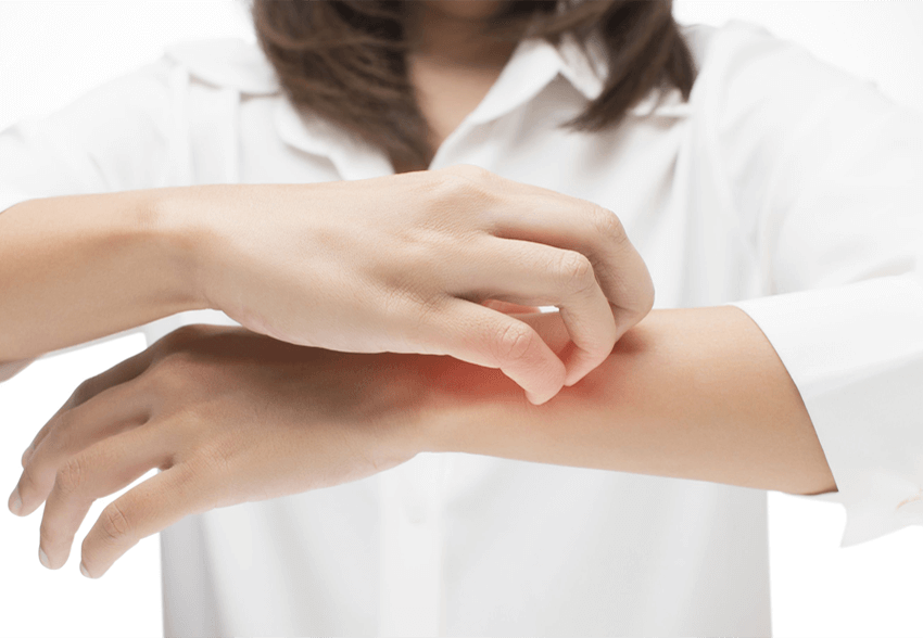 How to Tell if You Have a Skin Infection – Angleton ER